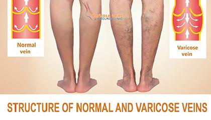 Varicose Veins Treatment in Bandra