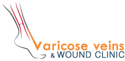 Varicose Veins Care Center