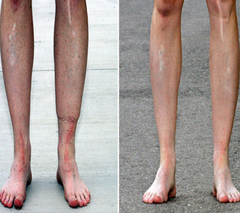 before-after varicose veins