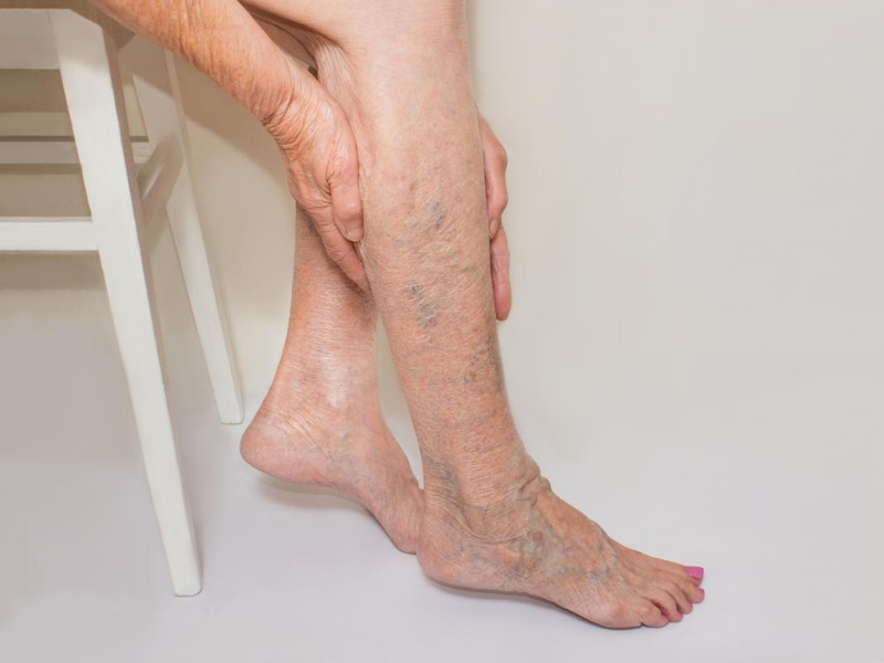 varicose-veins-home-treatment