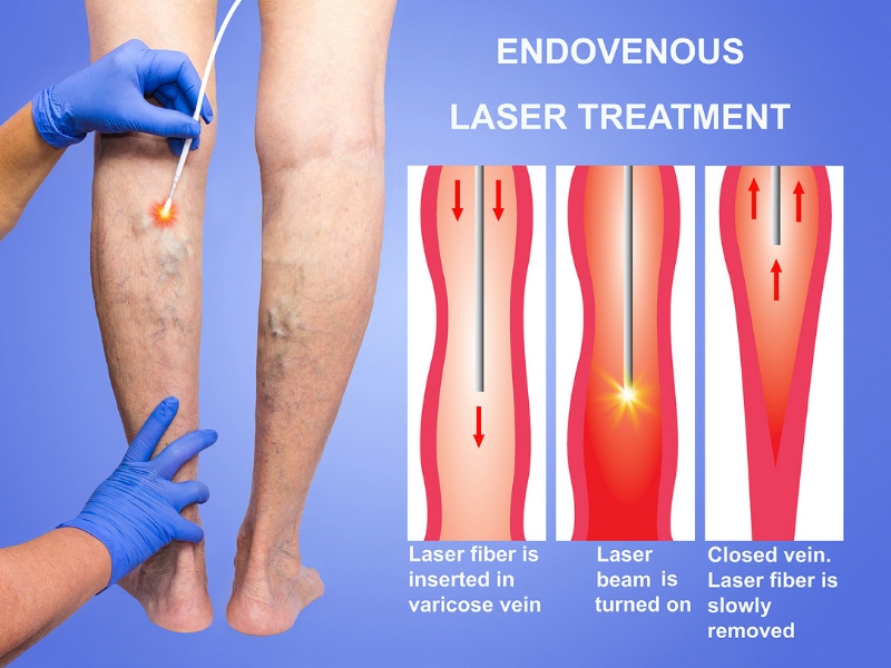 EndoVenous-Laser-Treatment